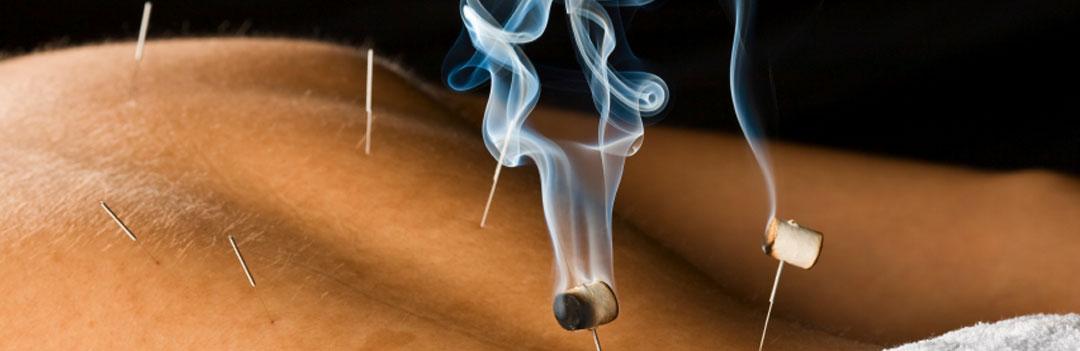 06-moxibustion
